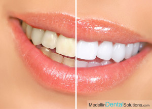 Dental Whitening Medellin English Speaking Dentist