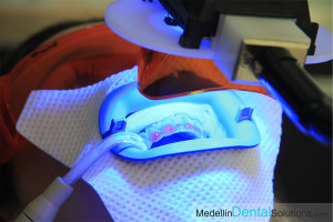 Dental Whitening Medellin