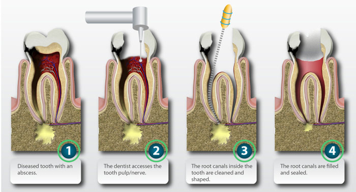 Root-canal-procedure