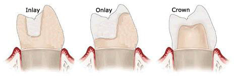 dental-inlay-onlay-and-crown