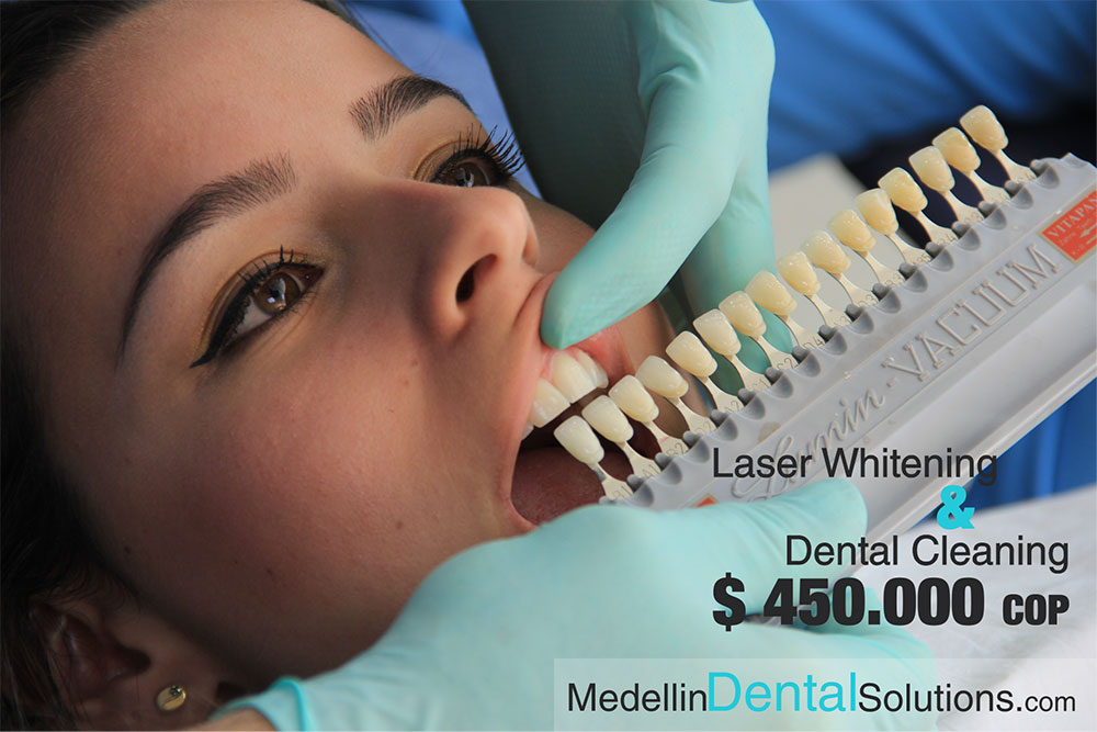 Dental-Whitening