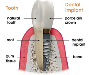 Dental Implants Medellin